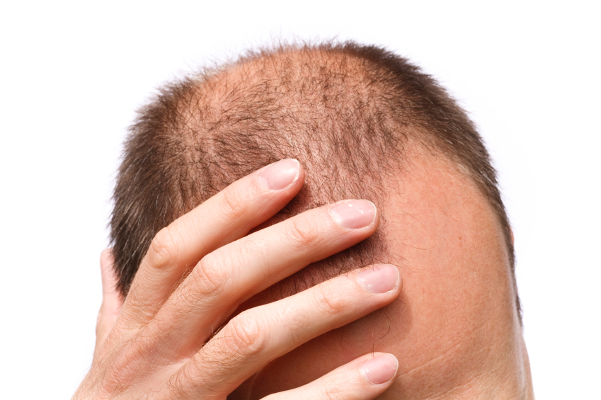 hair loss - bald man - novuhair - de-stress hair